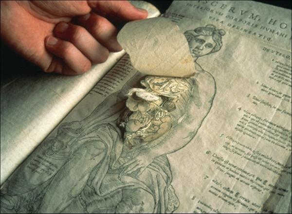 De Humani Corporis Fabrica Librorum Epitome (1543) - Andreas Vesalius